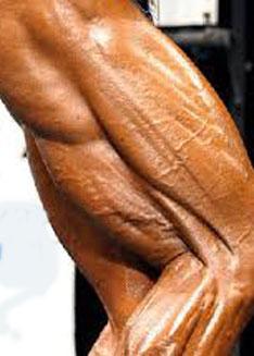 bovenbeenspieren